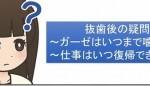 親知らず抜歯後の疑問~ガーゼはいつまで噛む?仕事への復帰は?~