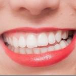 親知らずが及ぼす歯並びへの影響について